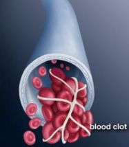 bloodclot_emedicinehealth